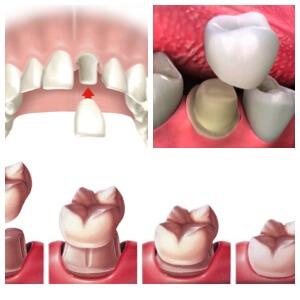Los Algodones Dental Crowns