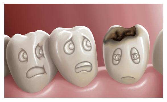 Cavities Los Algodones Dentists Guide