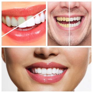 Los Algodones Teeth Whitening