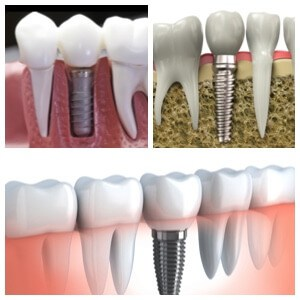 Los Algodones dental implants